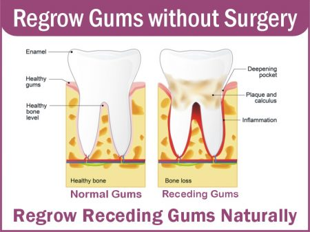 reversing gum recession naturally